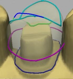 cerec tooth design