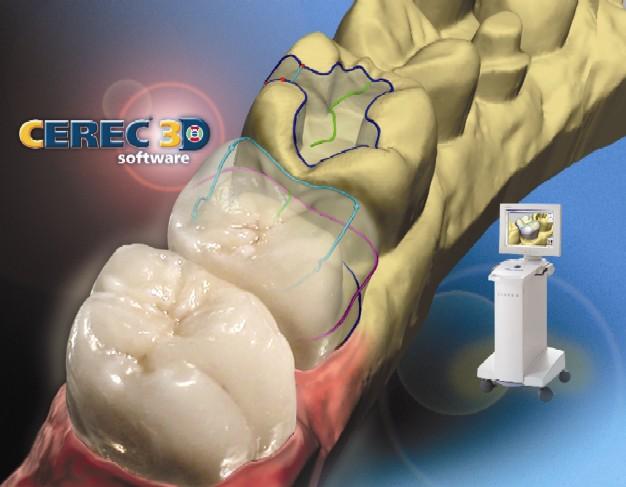 single visit dental crown